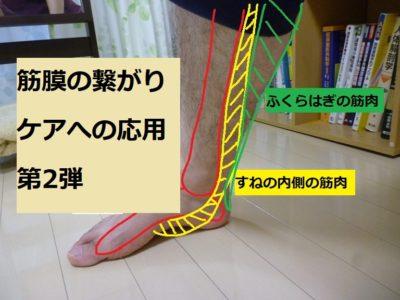 筋膜の繋がり第2弾の紹介