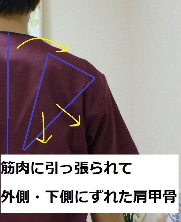 肩甲骨の外転・下制の図